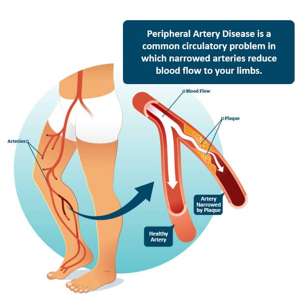 Peripheral Artery Disease - Diagnosing PAD - Causes of P.A.D.