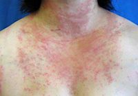 allergieausoleilnaturopathie