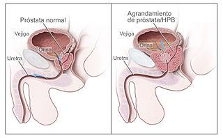Próstata grande o inflamada - tratamiento