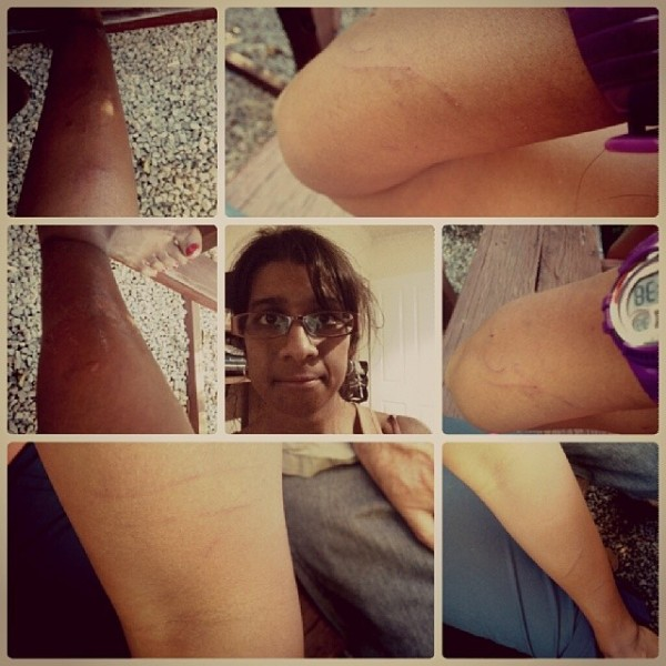 Battle scars at the end of the walk. There's more on my thighs and my face