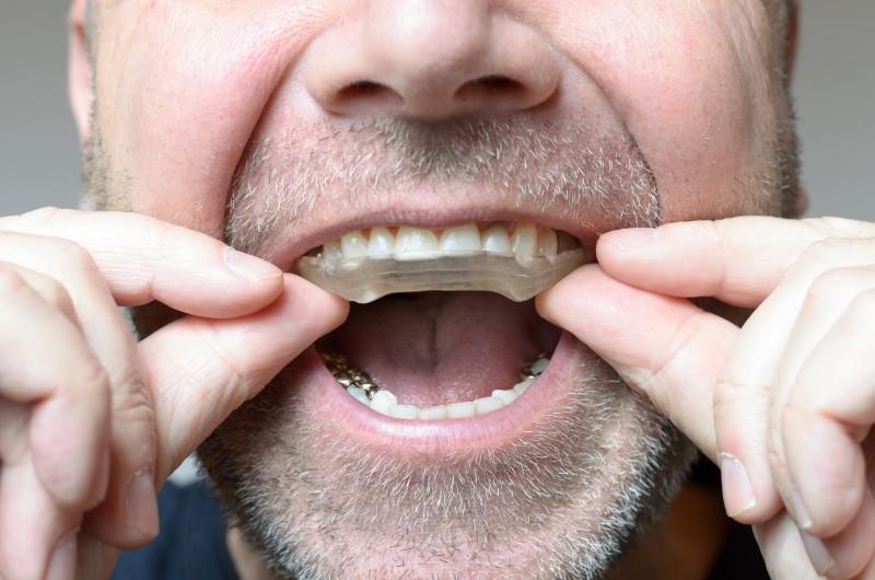 Teeth Grinding San Clemente Smiles