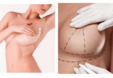 La Mastopexia. Cirugía de elevación de mamas