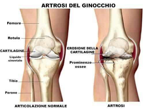 Risultati immagini per ginocchio