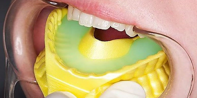 fluoride treatment dentist,