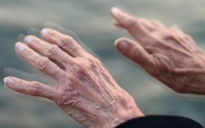 Parkinson: causas e sintomas