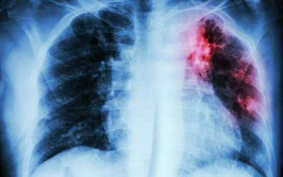 Vinte pessoas morrem de pneumonia por dia em Minas