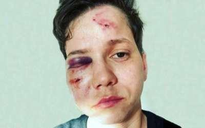 Polícia descarta homofobia e pode indiciar youtuber