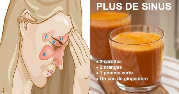 Sinus7