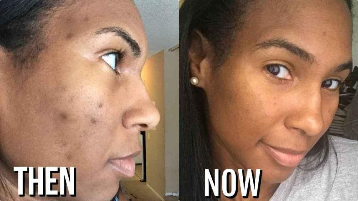 Comment se débarrasser des taches  taches noir sur la peau noire