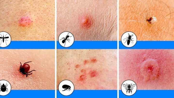 Remèdes à la maison rapides pour les piqûres d'insectes