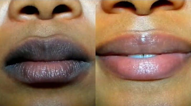 Comment éclaircir les lèvres sombres: 7 traitement naturel pour les lèvres foncées