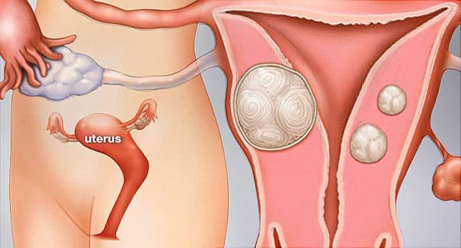 Remèdes naturels pour les fibromes pendant la grossesse
