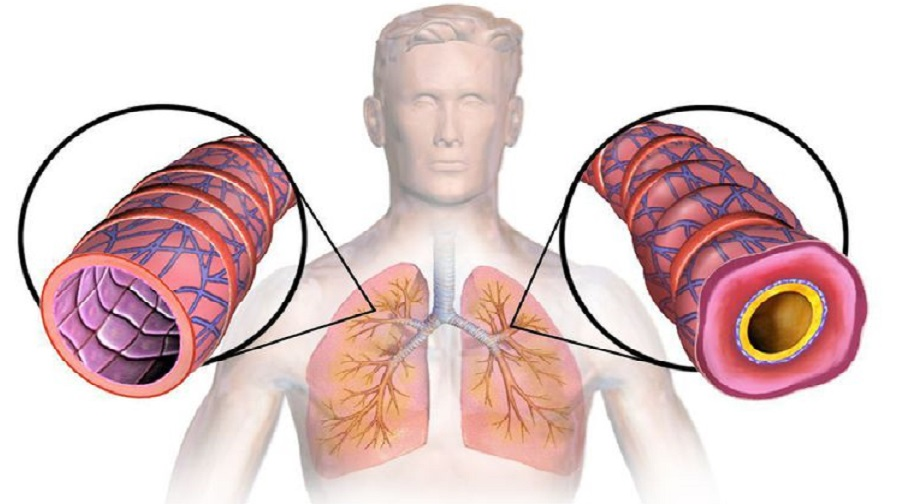 13 Remèdes naturels pour la bronchite qui fonctionne vraiment