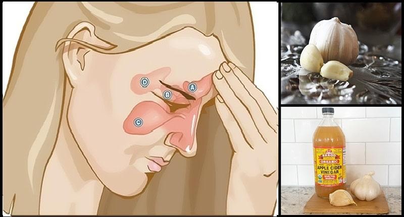 8 façons d'utiliser le l'ail pour l'infection des sinus
