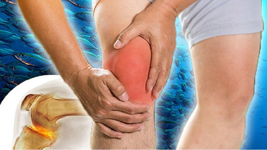 28 remèdes maison pour se débarrasser de l'arthrite rapidement