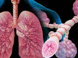 Qu'est-ce qui peut déclencher votre asthme?