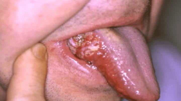 Attention : Sucer le Vag*n peut vous Causer un Cancer de la Bouche