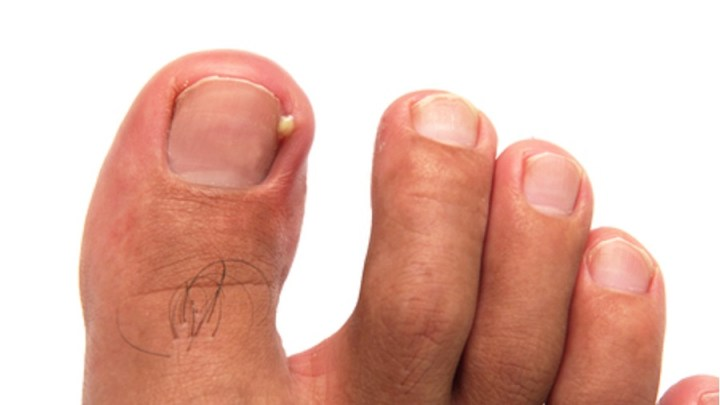 Remèdes à la maison pour l'ongle incarné (onchocryptose)