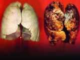 Combattre naturellement le cancer du poumon grâce aux vitamines et au yoga