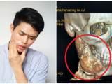 Cancer de la mâchoire signes, symptômes, causes, diagnostic et traitement