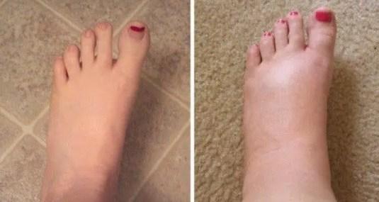 Image result for oedème des pieds