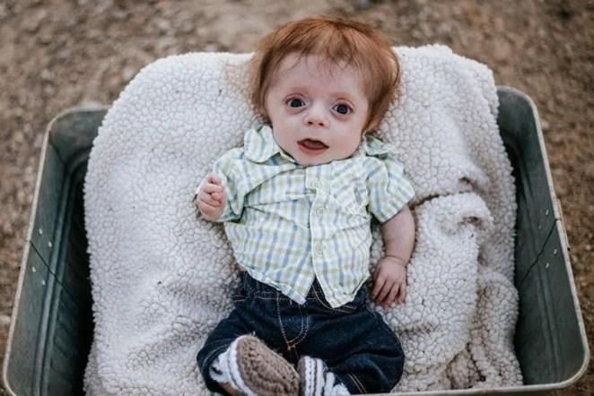 Un nouveau-né avec une maladie osseuse