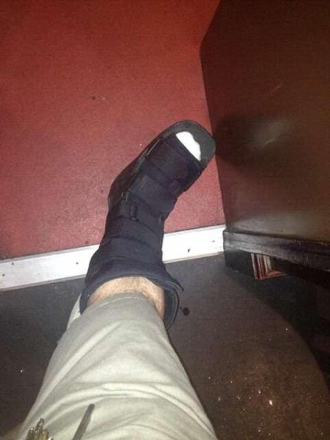 Matthew Alldis's foot.