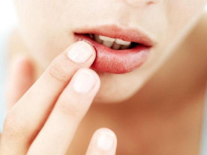 Cum să scăpați de aftele bucale