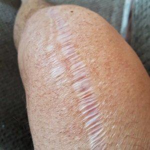 TKR knee replacement