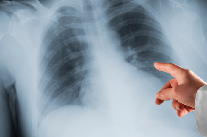 Medical School - Doctor Pointing at X-Ray of Human Lungs
