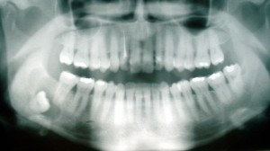 800px-Cyst_-_wisdom_tooth