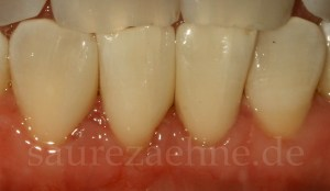 Zahnumformung mit Komposit verschluss der Zahnlücke