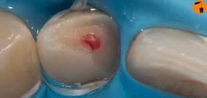 Partielle Pulpotomie - nach isolation