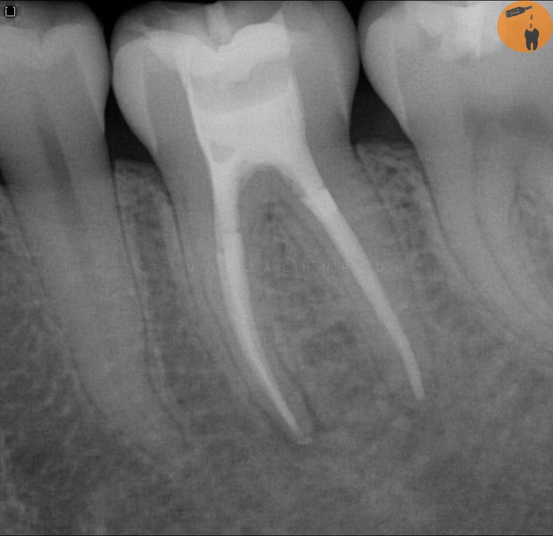 Kind zahn wird grau Grauer Zahn