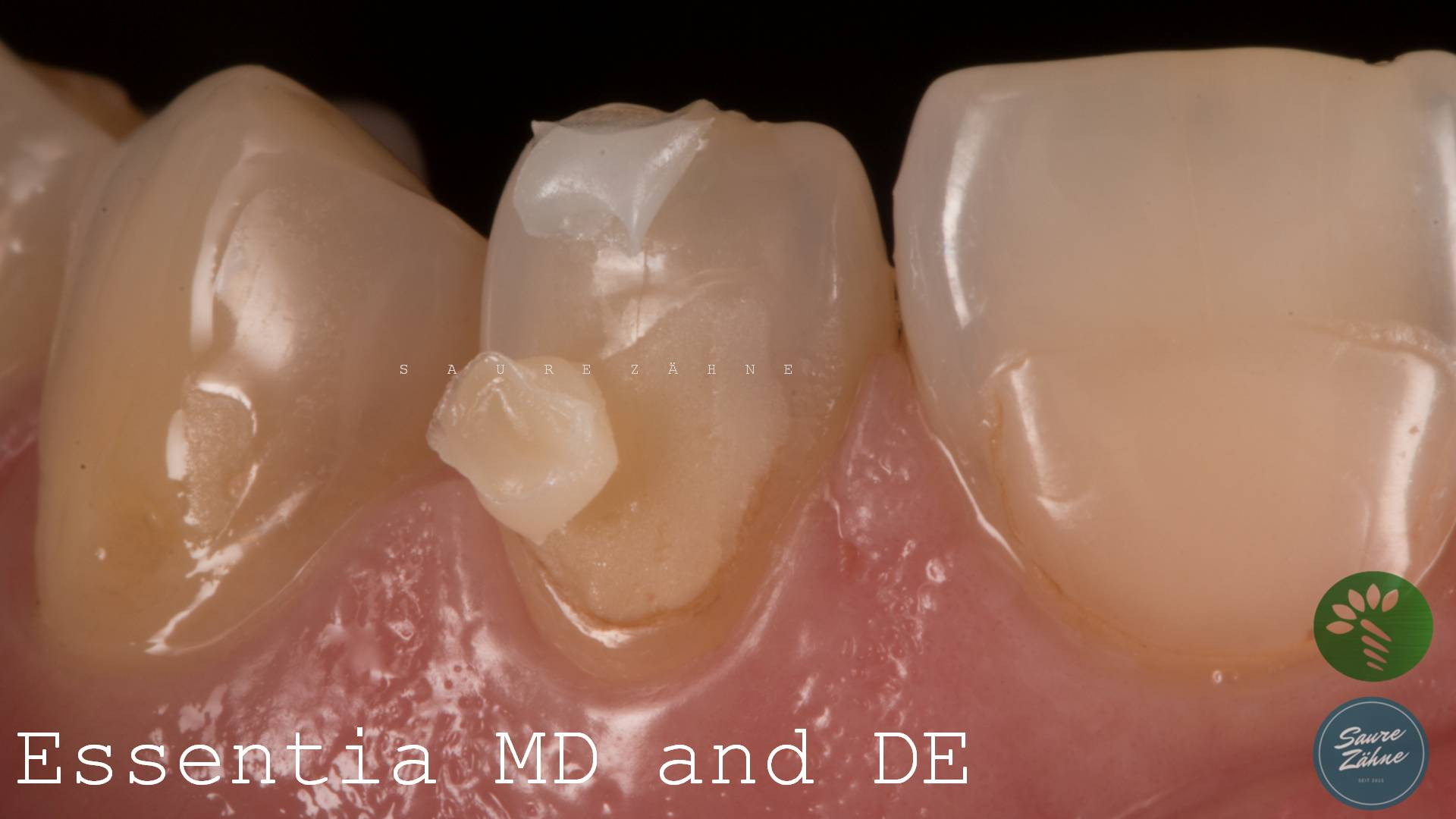 Essentia von GC Dental