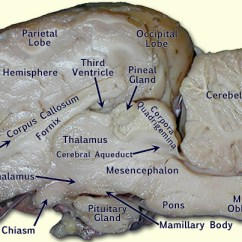 Lateral View Sheep Brain Diagram Renault Master 2005 Wiring Bio201-sheep