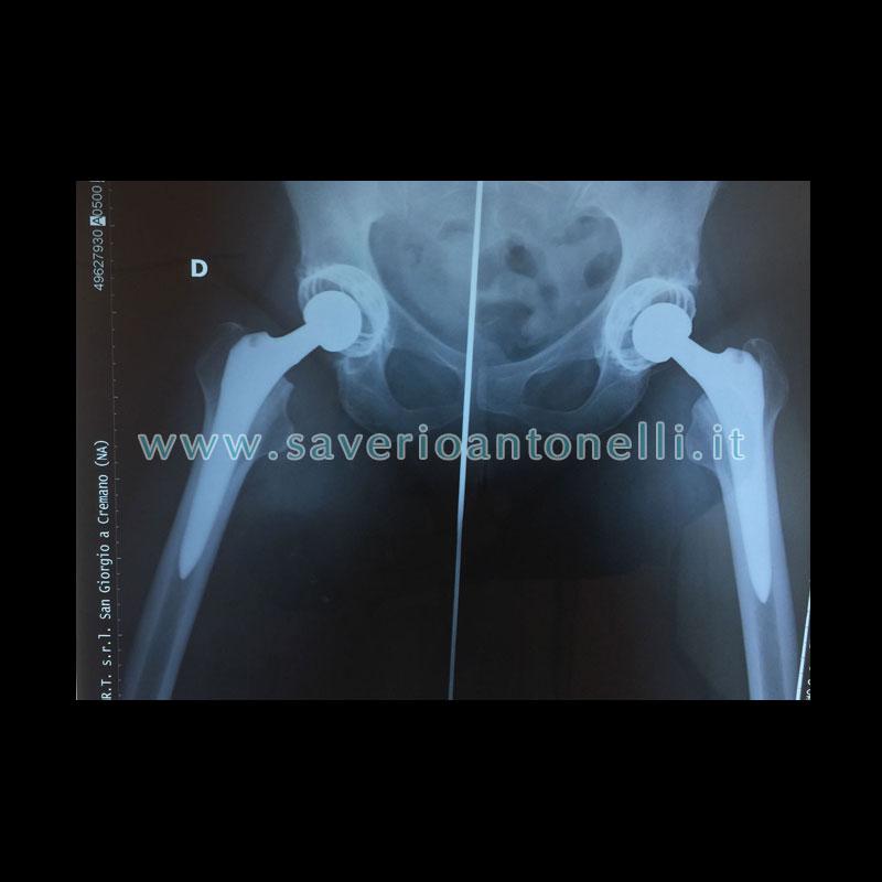 Saverio Antonelli  Chirurgo ortopedico specialista anca e ginocchio
