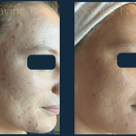 A.N.-Before.-After-Acne