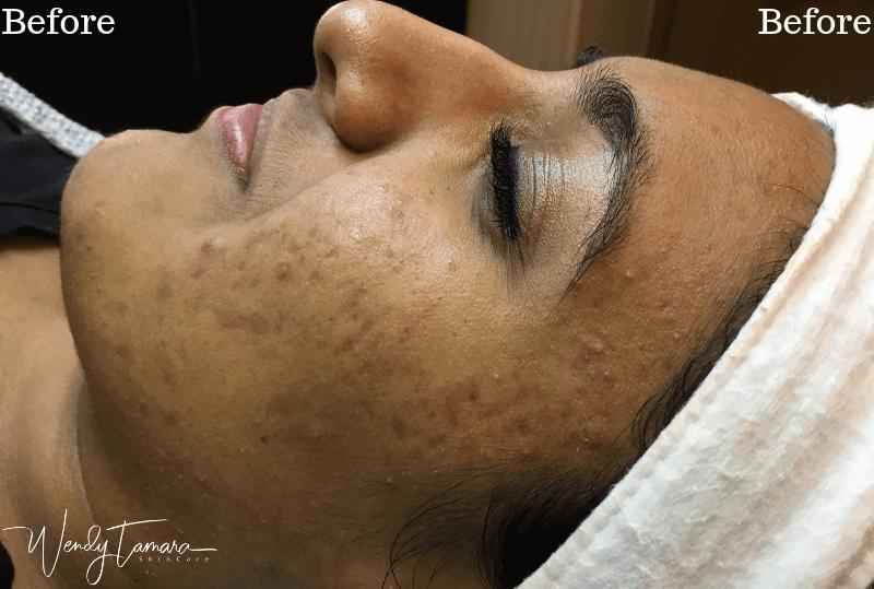 acne ethnic skin