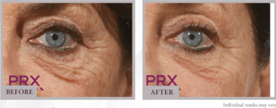 PRX-T33 eyes before after olympia