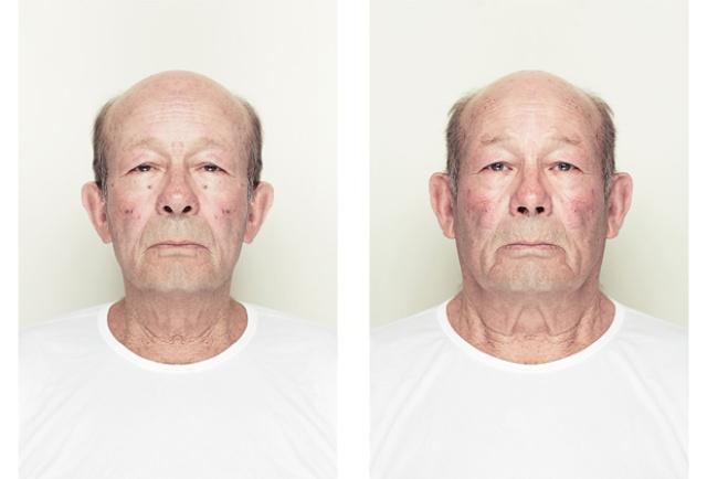 Asymétrie du visage