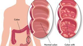 Ulcerozni kolitis – savjeti za prehranu