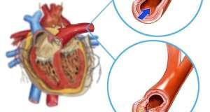 Kako spriječiti koronarne bolesti