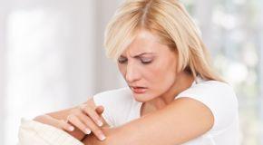 Psorijaza i liječenje