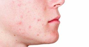 kako zivjeti s dermatitisom