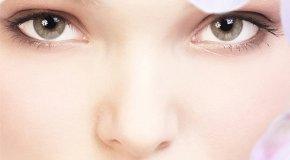 Nakupine kolesterola oko očiju