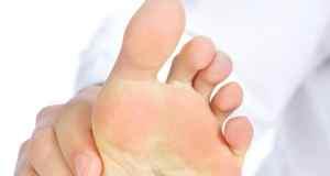 Kako smanjiti otečenost nogu