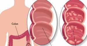 Upalna bolest crijeva
