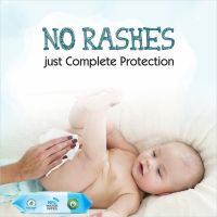 Reason Behind Those Red Scaly Rashes on Babies Sensitive Skin