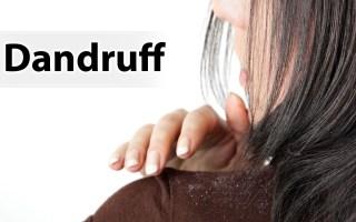 Dandruff Removal DIYs